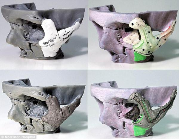 Modèle du crâne de Stephen Power et implants imprimés en 3D.