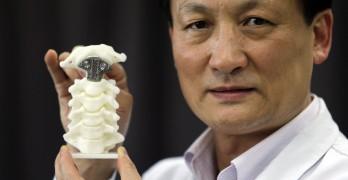 Medecine et impression 3D comme cette prothèse de vertèbre